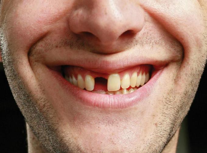 nằm mơ thấy rụng răng, gãy răng là điềm báo gì