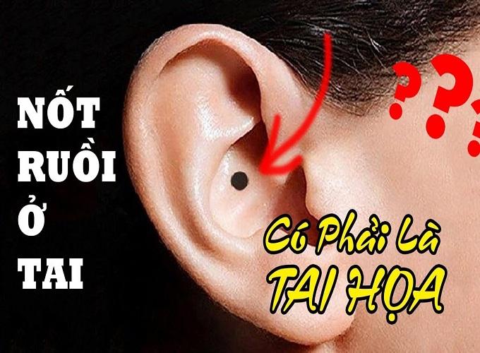 Xem bói nốt ruồi ở tai